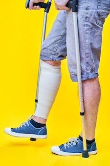 Close das pernas de um homem de perfil, usando shorts e muletas, com a perna enfaixada.