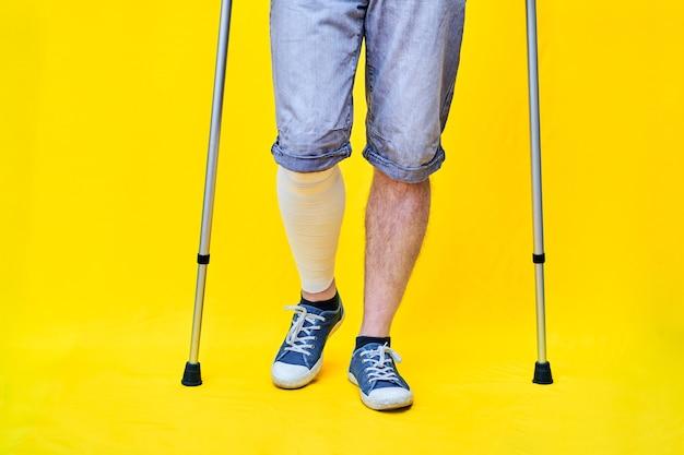 Close das pernas de um homem de shorts e muletas, com uma perna enfaixada