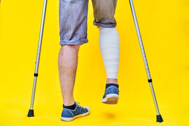 Close das pernas de um homem por trás com shorts e muletas, com uma perna enfaixada