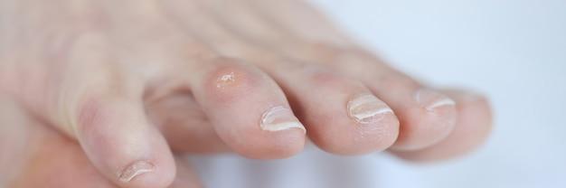 Close de calo seco no dedo do pé da mulher, tratamento do conceito de calosidades e calosidades
