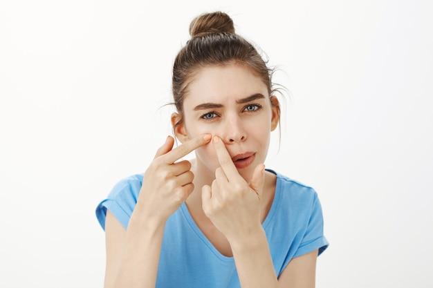 Close de mulher estourando espinha, removendo acne da bochecha