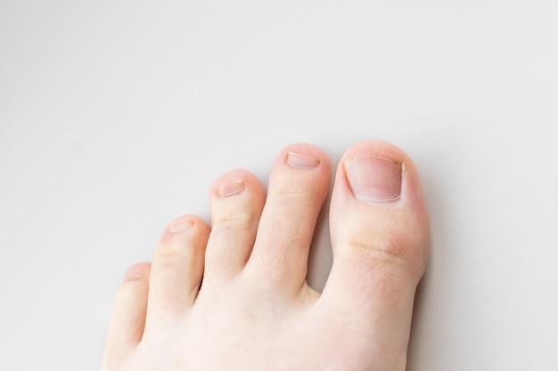 Close de pernas femininas, dedos e unhas sem pedicure