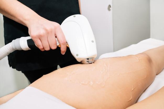 Close de um diodo na mão de uma esteticista aplicando tratamento de depilação a laser em uma mulher em sua coxa