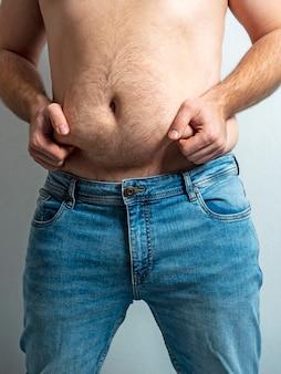 Close de um homem segurando as dobras de sua barriga gorda. o conceito de problemas com o excesso de peso, uma clínica para emagrecer
