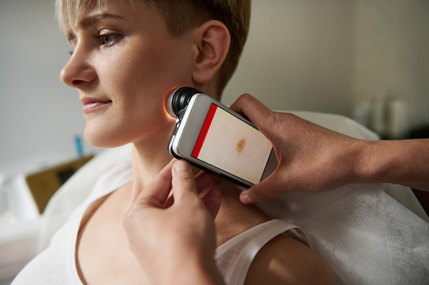 Close de um médico examinando manchas na pele de uma jovem. o conceito de onco-diagnóstico precoce de neoplasias da pele. dermatoscopia