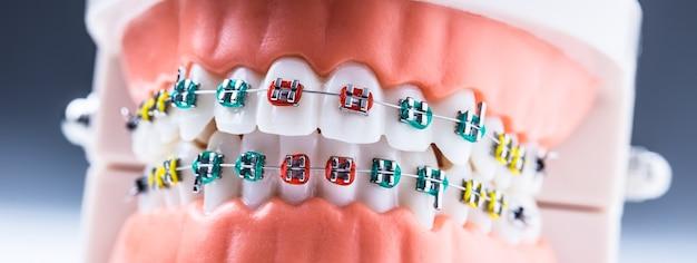 Close de um modelo ortodôntico de maxilares e dentes com aparelho.