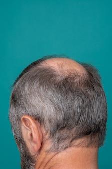 Close de uma cabeça de homem meio careca, conceito de transplante de cabelo para queda de cabelo