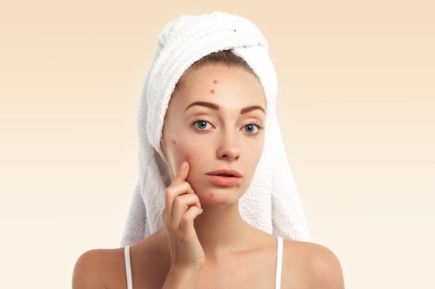 Close de uma jovem com uma toalha na cabeça e espinhas no rosto