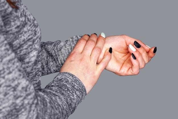 Close de uma mulher segurando a lesão na mão