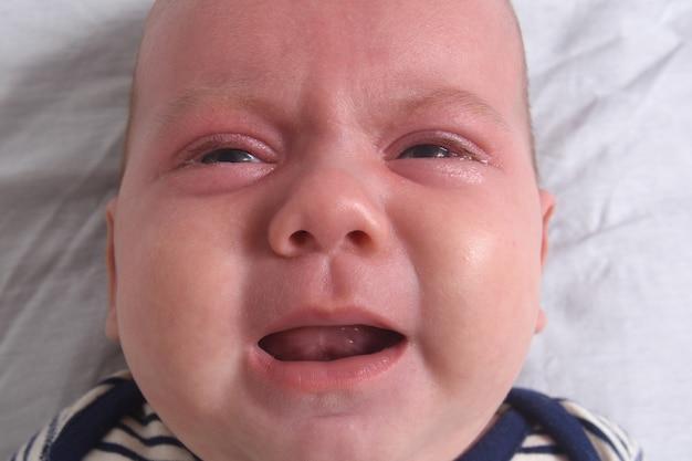 Close do retrato de um bebê chorando com a pele avermelhada