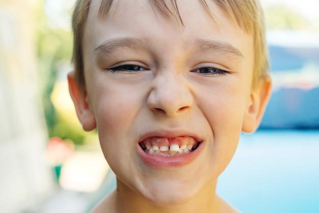 Close dos dentes do menino