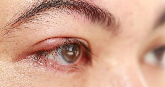 Close-up abcesso da tampa do olho superior direito