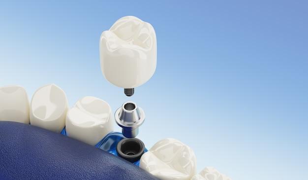 Close up componente de implantes dentários transparente. renderização 3d.