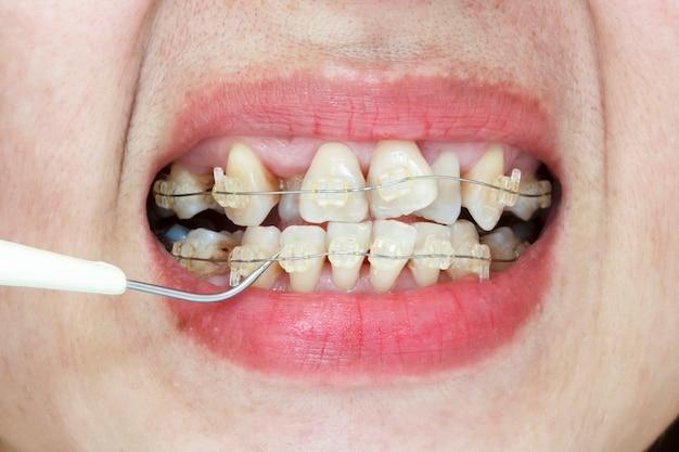 Close-up da boca de dentes tortos com aparelho e removedor de placa