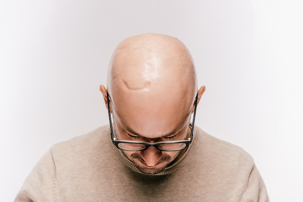 Close up da cabeça masculina careca após a operação de oncologia. marcas de irradiação e quimioterapia de tumores cerebrais. paciente sobrevivente após câncer. homem sem pelos com cicatrizes. irritação na pele. operação de neurocirurgia