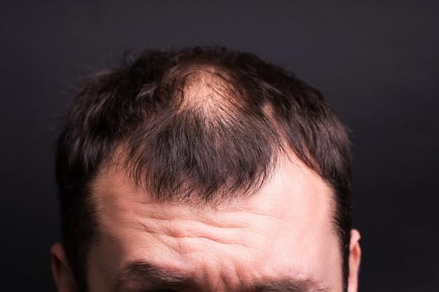 Close-up da cabeça masculina com calvície. fundo preto do estúdio.