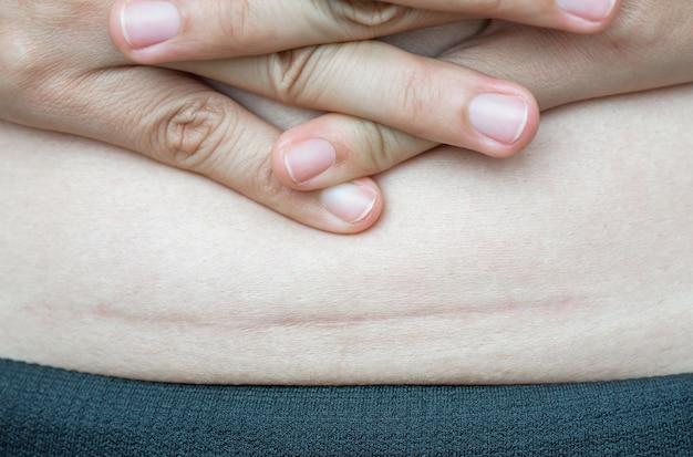 Close up da mulher que mostra em sua cicatriz escura da barriga de uma cesariana.