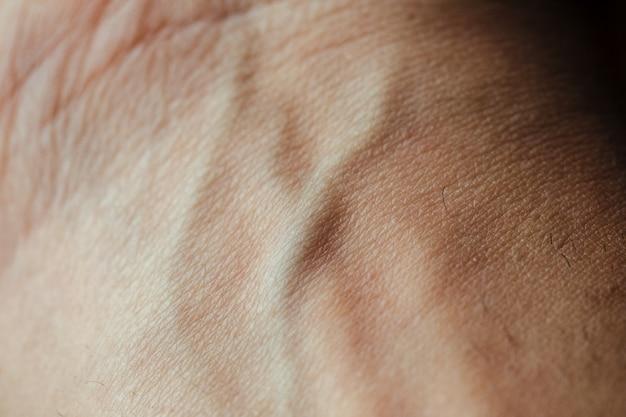 Close-up da pele da mão