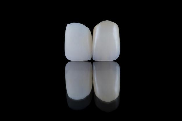 Close-up de coroas dentárias de dissilicato de lítio artificiais de incisivos centrais sem pintura e pintadas