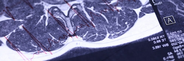 Close-up de diagnóstico de raio-x do corpo humano. skiagram com informações detalhadas do paciente. imagem de ressonância magnética. conceito moderno de medicina e ciência