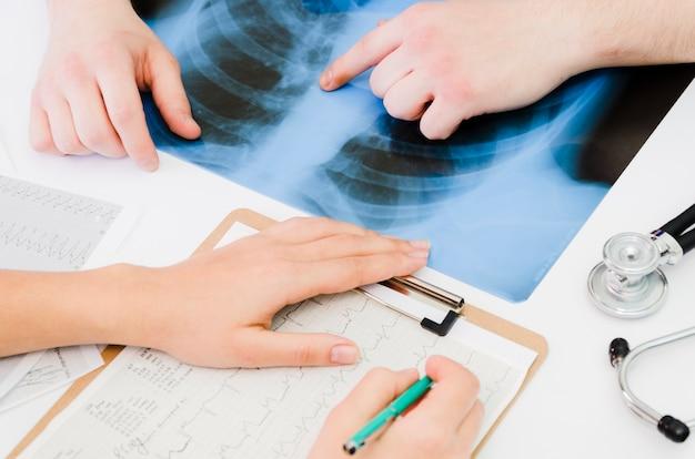 Close-up, de, doutor, examinando, a, ecg, relatório médico, com, paciente, tocar, a, raio x, ligado, tabela
