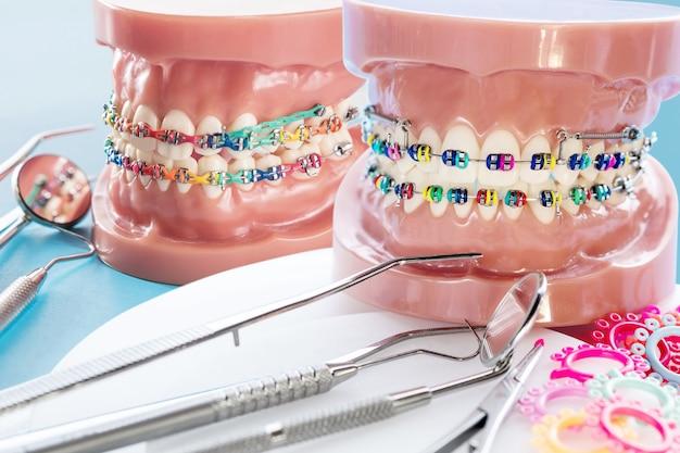 Close up de ferramentas dentais e modelo ortodôntico - modelo de demonstração de vários tipos de braquete ou aparelho ortodôntico