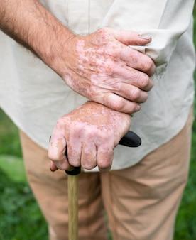 Close-up de mãos masculinas com pigmentos de vitiligo ao ar livre