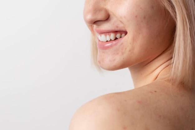 Close-up de modelo sorridente com acne