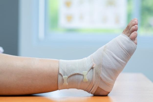 Close-up de tornozelo ferido com curativo na clínica, osteófitos e calcanhar, fáscia