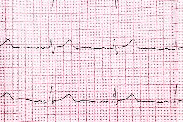 Close up de um eletrocardiograma em papel