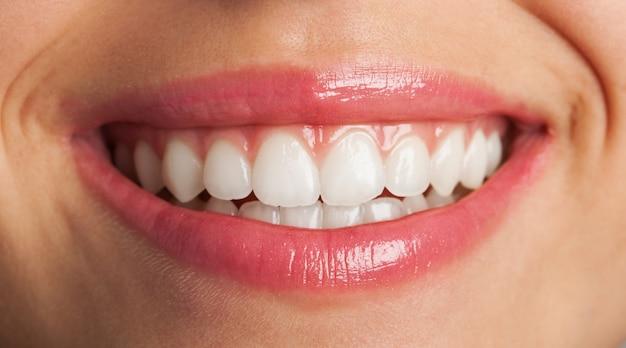 Close-up de um sorriso perfeito
