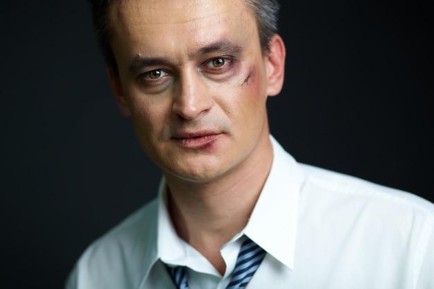 Close-up do homem de negócios com contusões