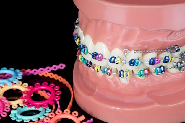 Close-up do modelo ortodôntico de demonstração do modelo dos dentes das variedades do braquete ou aparelho ortodôntico