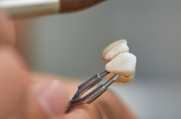 Close up do técnico dental que põe cerâmico aos implantes dentais em seu laboratório.