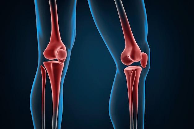 Close-up dos joelhos lesionados