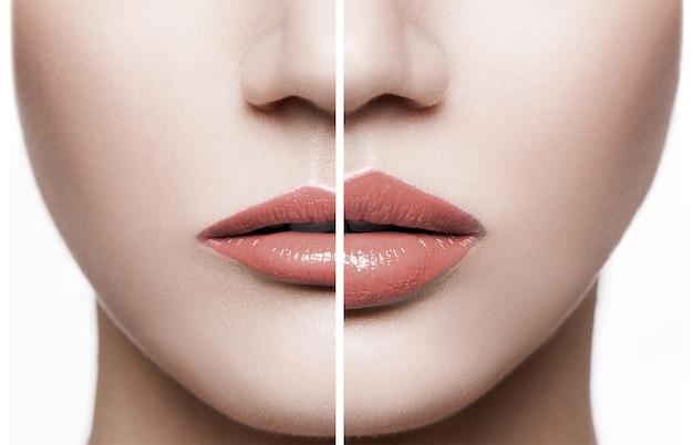 Close up dos lábios femininos antes e depois do procedimento de aumento. conceito de beleza de tratamento e cuidado da beleza humana.