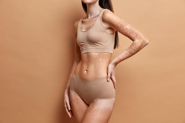 Close-up em mulher magra com pele vitiligo