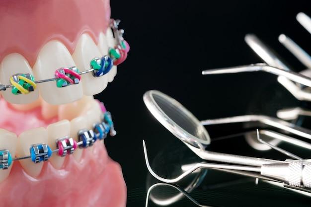 Close-up ferramentas de dentista e modelo ortodôntico - modelo de dentes de demonstração de variedades de bráquete ortodôntico ou braçadeira