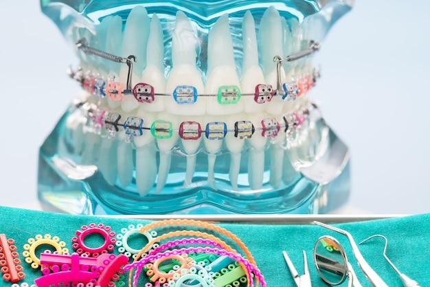 Close-up ferramentas de dentista e modelo ortodôntico - modelo de dentes de demonstração de variedades de bráquete ortodôntico