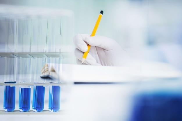Close-up mão de cirurgião médico químico / cientista ensaio de ensaios teste tubo em laboratório, foco seletivo