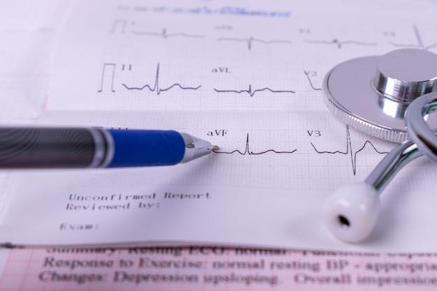 Close-up médico analisando relatório de gráfico de estatísticas de saúde com estetoscópio no relatório de gráficos cardíacos