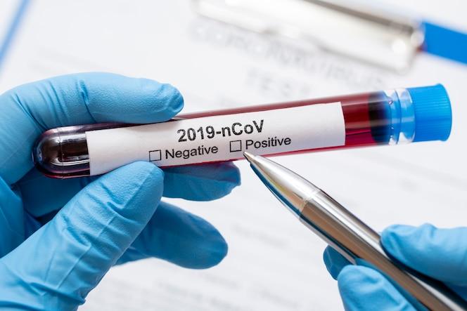 Close-up médico segurando amostras de vírus perigosos