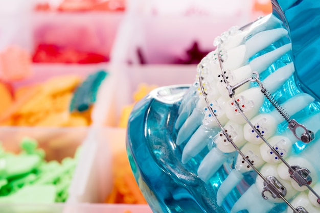 Close up modelo ortodôntico - modelo de dentes de demonstração de variedades de suporte ortodôntico ou cinta