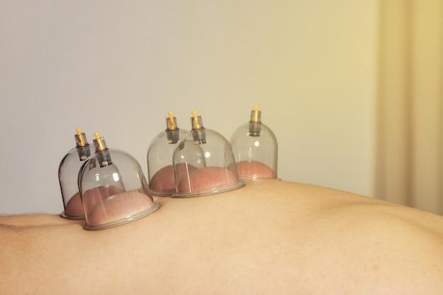 Close-up para várias ventosas, terapia médica de ventosas no corpo humano. médico com xícaras