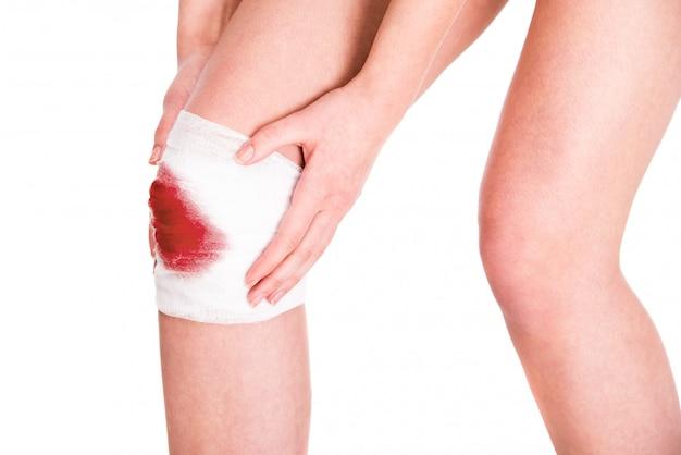 Close-up uma perna de mulher com gaze sangrenta nele.