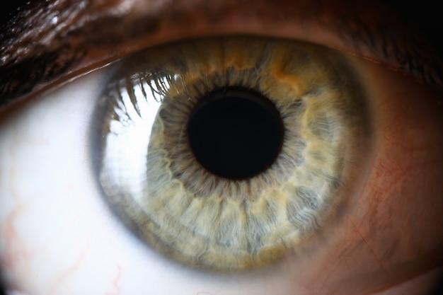 Closeup, aluno humano verde saudável, diagnóstico ocular