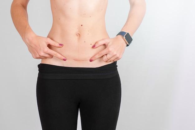 Closeup, de, barriga mulher, com, um, cicatriz, de, um, cesarean, seção, tamanho, isolado