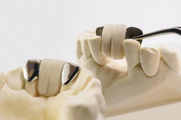 Closeup dental maryland bridge equipamento de coroa e ponte e modelo de restauração de correção expressa