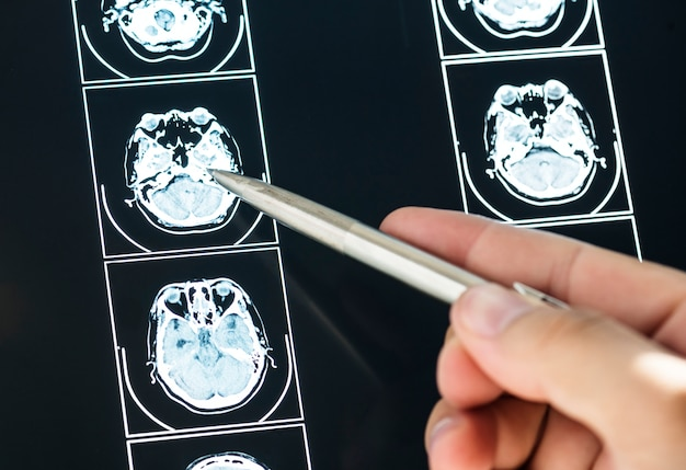Closeup do resultado do exame de ressonância magnética do cérebro