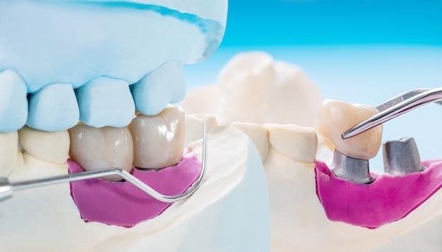 Closeup / implant prótese ou prótese / coroa dentária e ponte e implante dentário equipamentos e modelo de restauração expressa fix.